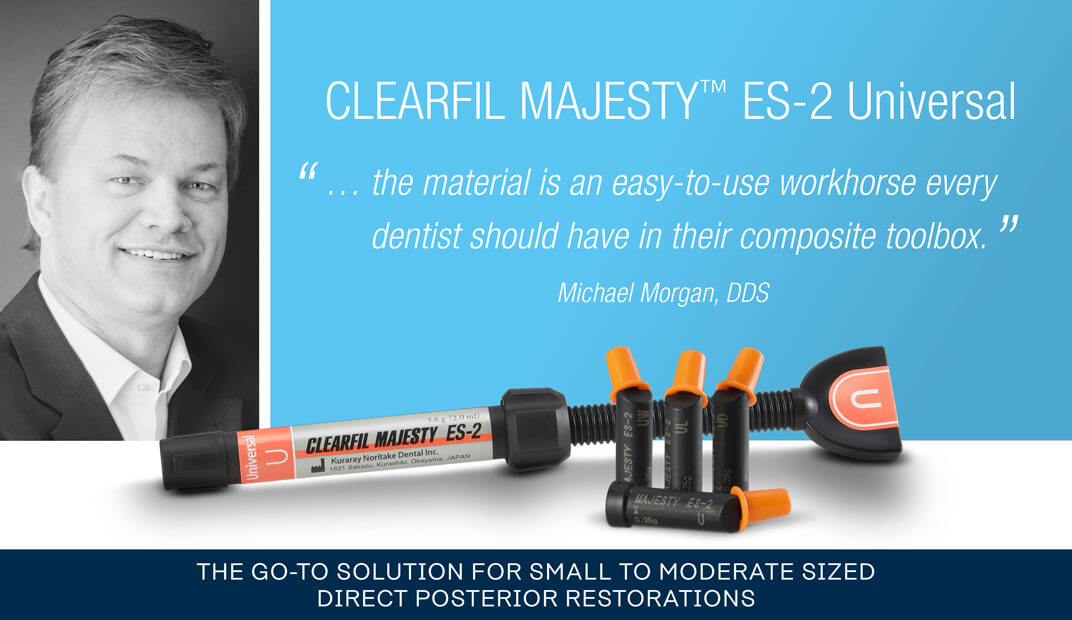 Go to solution for small to moderate sized direct posterior restorations case by Michael Morgan DDS