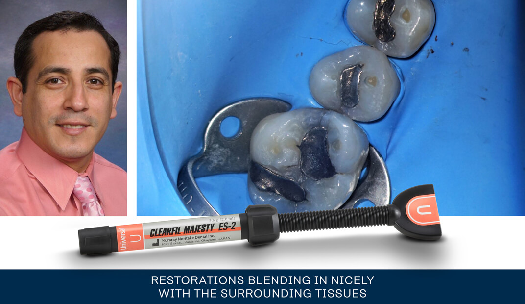 Restorations blending in nicely with the surrounding tissues case by Jorge F Zapata DDS