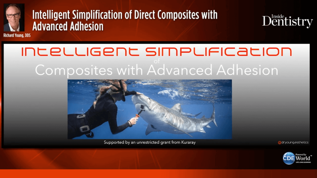 Intelligent Simplification of Direct Composites with Advanced Adhesion Webinar image